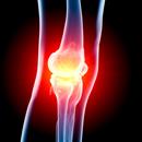 Trápí vás těžké nohy?