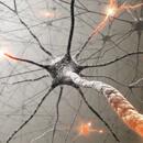 Autoimunitní choroby – roztroušená skleróza