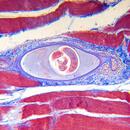 Trichinóza