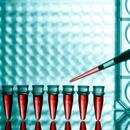 Kterých 7 krevních testů je dobré si nechat udělat?